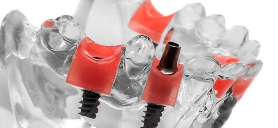 Das Dentallabor Hoffmann verarbeitet alle gängigen Systeme namhafter Implantat-Hersteller.