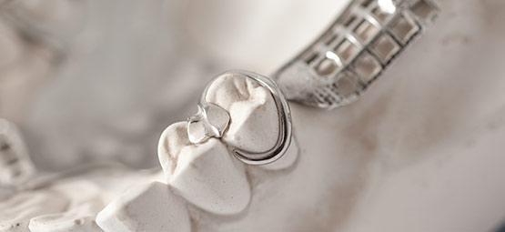 Herausnehmbare Prothesen werden im Dentallabor Hoffmann mithilfe des Klammer-Modellgusses gefertigt.