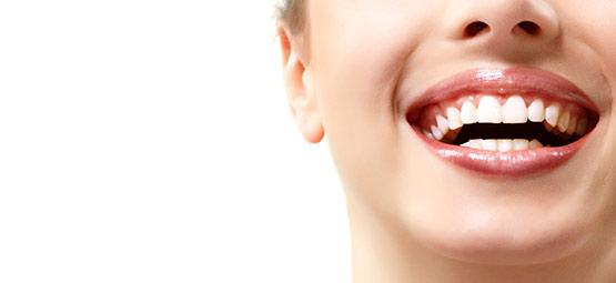 Schonendes Bleaching im Dentallabor Hoffmann. Gesunde und weiße Zähne für Ihr Selbstvertrauen.